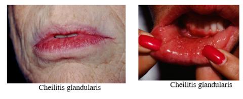 Hình ảnh viêm môi bong vảy